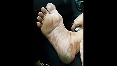 Mature dirty soles part 2 - Very callused heels